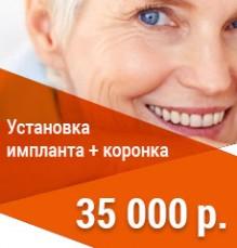 Установка коронки на импланте 35000р.