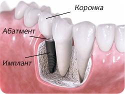 koronki_na_implanty