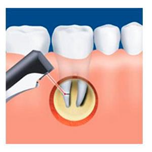 rezekciya-zuba