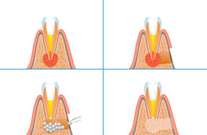 zubnaya-hirurgiya