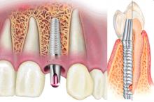 implantacia