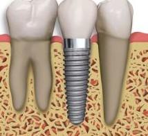 implantaciya_0